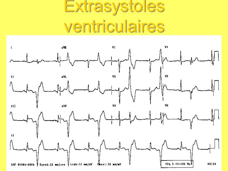Tachycardies Fibrillation atriale Rythme atrial anarchique, toutes les cellules atriales se dépolarisant de façon désorganisée, très rapide : tachycardie irrégulière