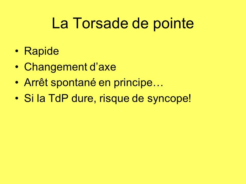 La Torsade de pointe Rapide Changement daxe Arrêt spontané en principe… Si la TdP dure, risque de syncope!