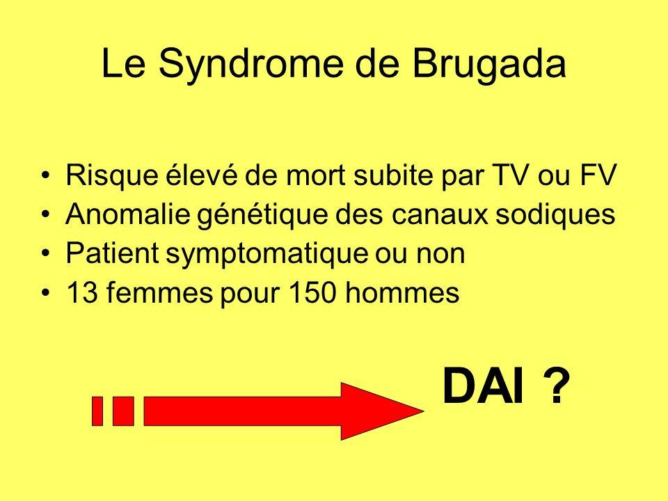 Le Syndrome de Brugada Risque élevé de mort subite par TV ou FV Anomalie génétique des canaux sodiques Patient symptomatique ou non 13 femmes pour 150