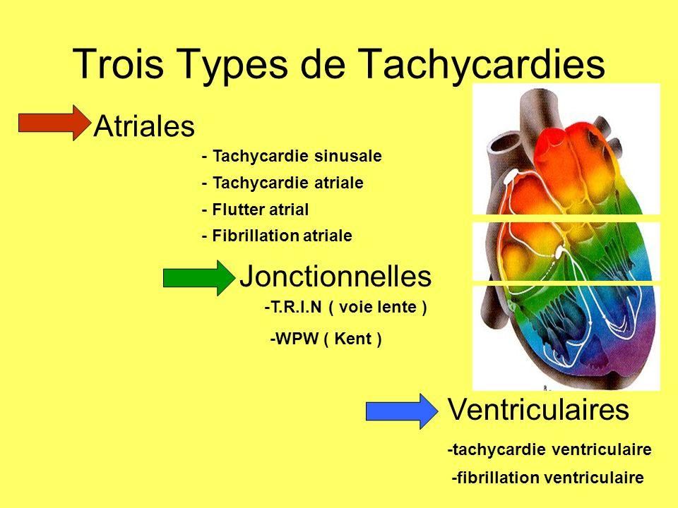 Principales anomalies rythmiques Les bradycardiesLes bradycardies Par dysfonction sinusale Par trouble de la conduction auriculo-ventriculaire Les tachycardiesLes tachycardies Supra-ventriculaires : flutter, fibrillation auriculaire Jonctionnelles : Bouveret, RR sur WPW Ventriculaires : tachycardie ventriculaire, fibrillation ventriculaire