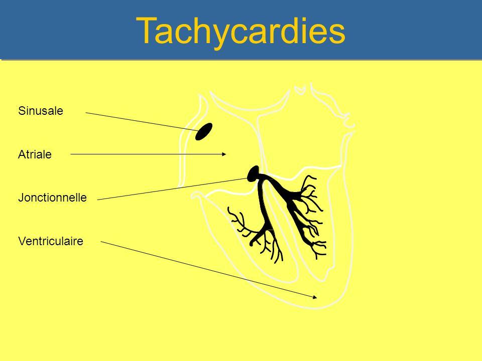 Les Tachycardies supra ventriculaires La Tachycardie sinusale La Tachycardie atriale La Fibrillation auriculaire Le Flutter auriculaire Les Tachycardies jonctionnelles – Par réentrée intra nodale – Wolff Parkinson White