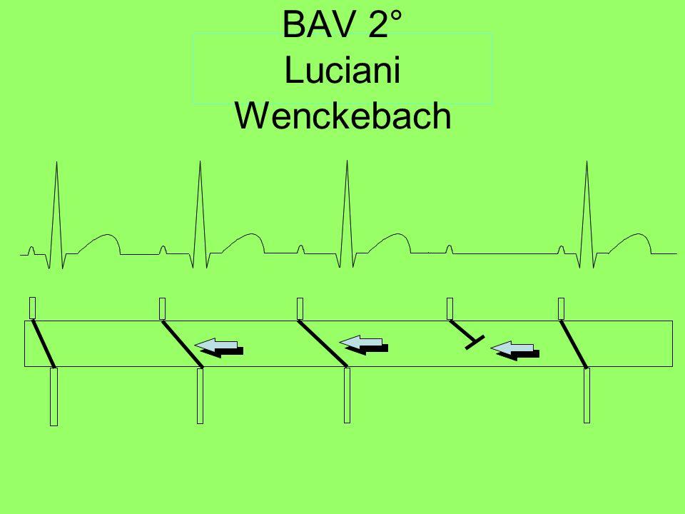 BAV 2° Luciani Wenckebach