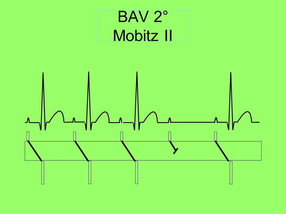 BAV 2° Mobitz II