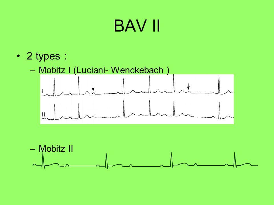 BAV II 2 types : –Mobitz I (Luciani- Wenckebach ) –Mobitz II
