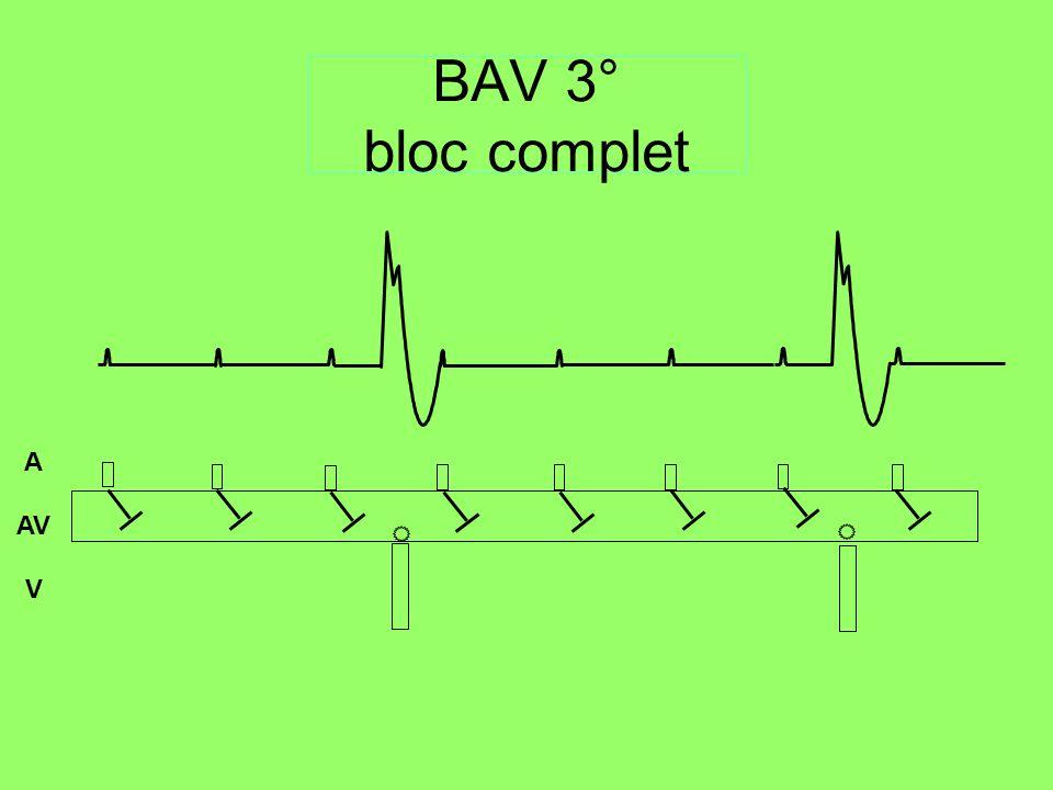 AV A V BAV 3° bloc complet