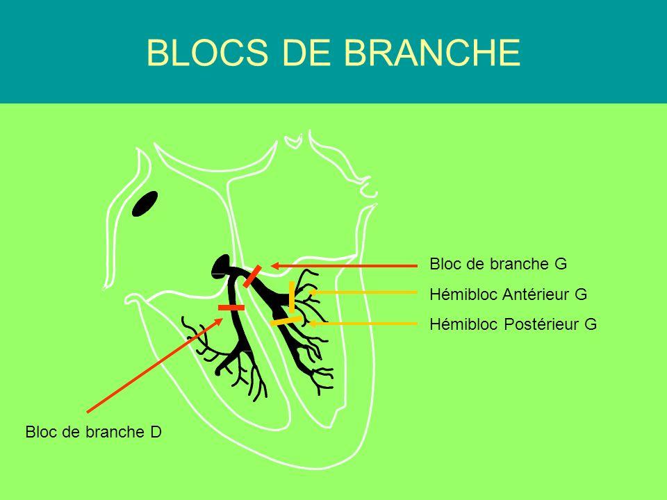 PR Court < 120 ms BLOCS DE BRANCHE Bloc de branche G Hémibloc Antérieur G Hémibloc Postérieur G Bloc de branche D