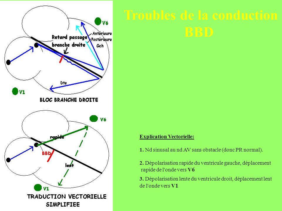 Explication Vectorielle: 1. Nd sinusal au nd AV sans obstacle (donc PR normal). 2. Dépolarisation rapide du ventricule gauche, déplacement rapide de l