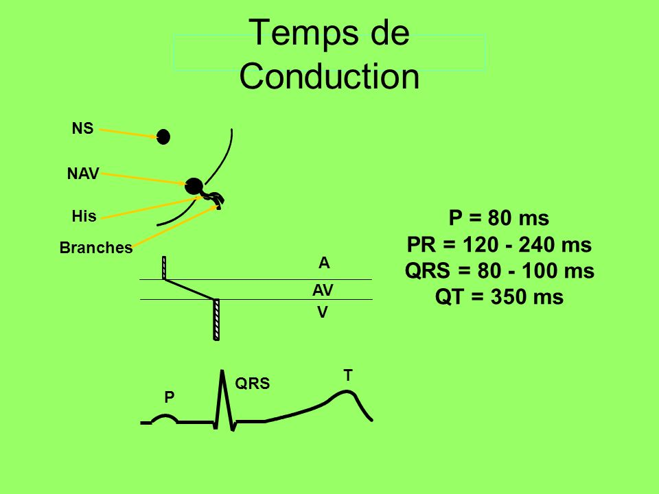 NS NAV His Branches A AV V P QRS T P = 80 ms PR = 120 - 240 ms QRS = 80 - 100 ms QT = 350 ms Temps de Conduction
