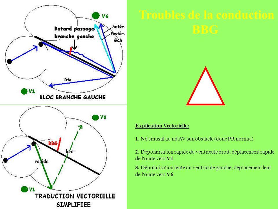 Troubles de la conduction BBG Explication Vectorielle: 1. Nd sinusal au nd AV san obstacle (donc PR normal). 2. Dépolarisation rapide du ventricule dr