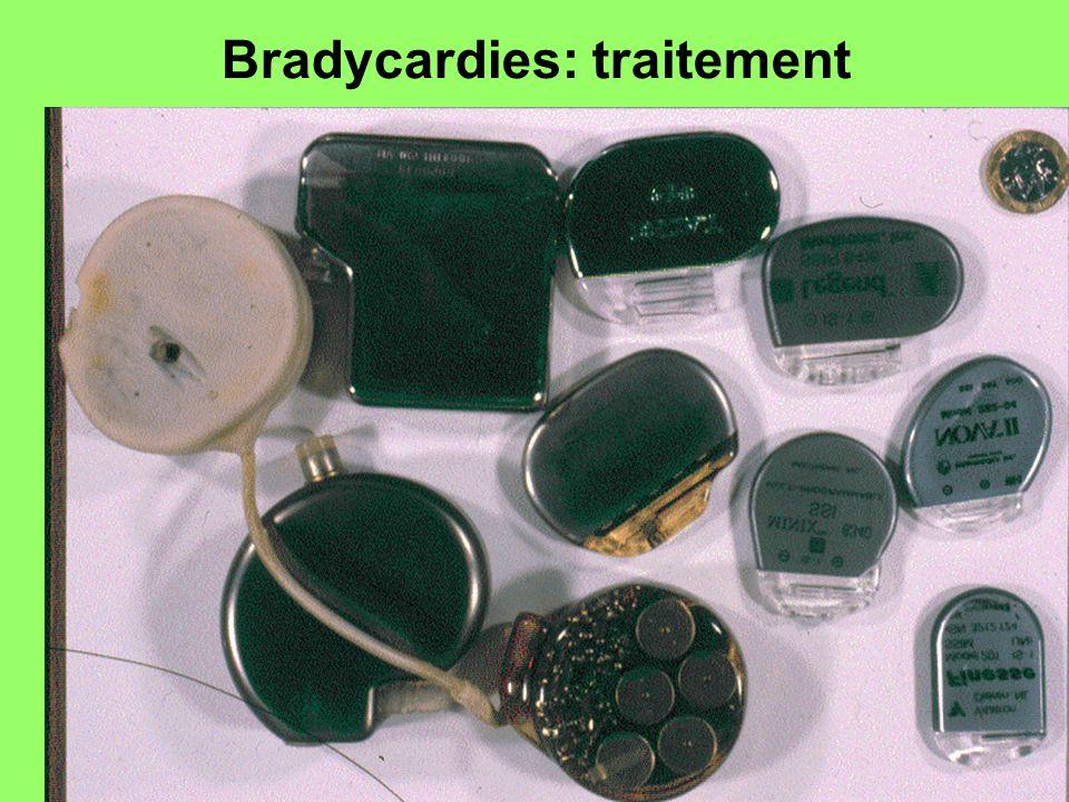 Bradycardies: traitement