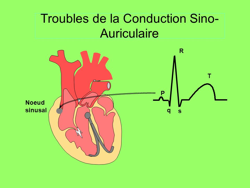 1 - Noeud sinusal : Dysfonction sinusale OD OG TROUBLES DE LA CONDUCTION 2 - Périphérie NS : Blocs sino-atriaux 3 – NAV, His et branches : Blocs auriculo-ventriculaires 4 –B ranches, Hémibranches Blocs de branche, Hémiblocs