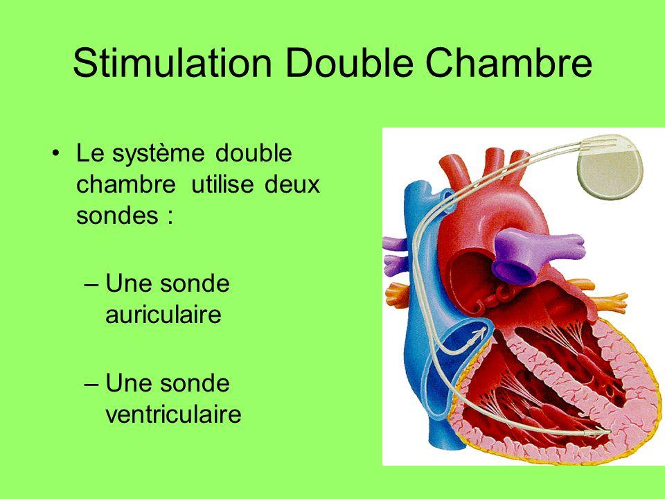 Stimulation Double Chambre Le système double chambre utilise deux sondes : –Une sonde auriculaire –Une sonde ventriculaire