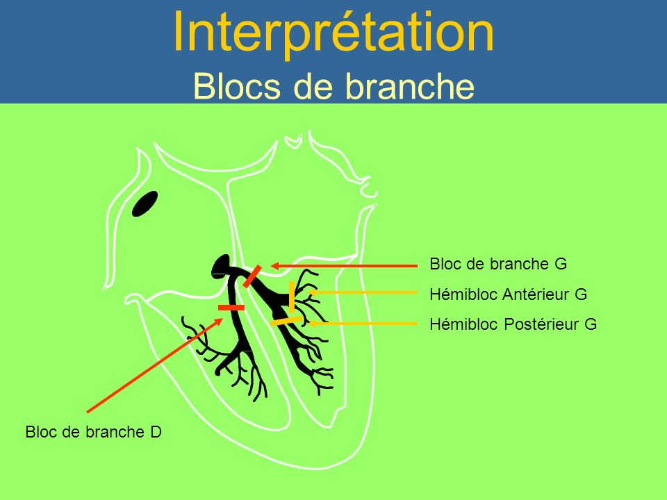 PR Court < 120 ms Interprétation Blocs de branche Bloc de branche G Hémibloc Antérieur G Hémibloc Postérieur G Bloc de branche D