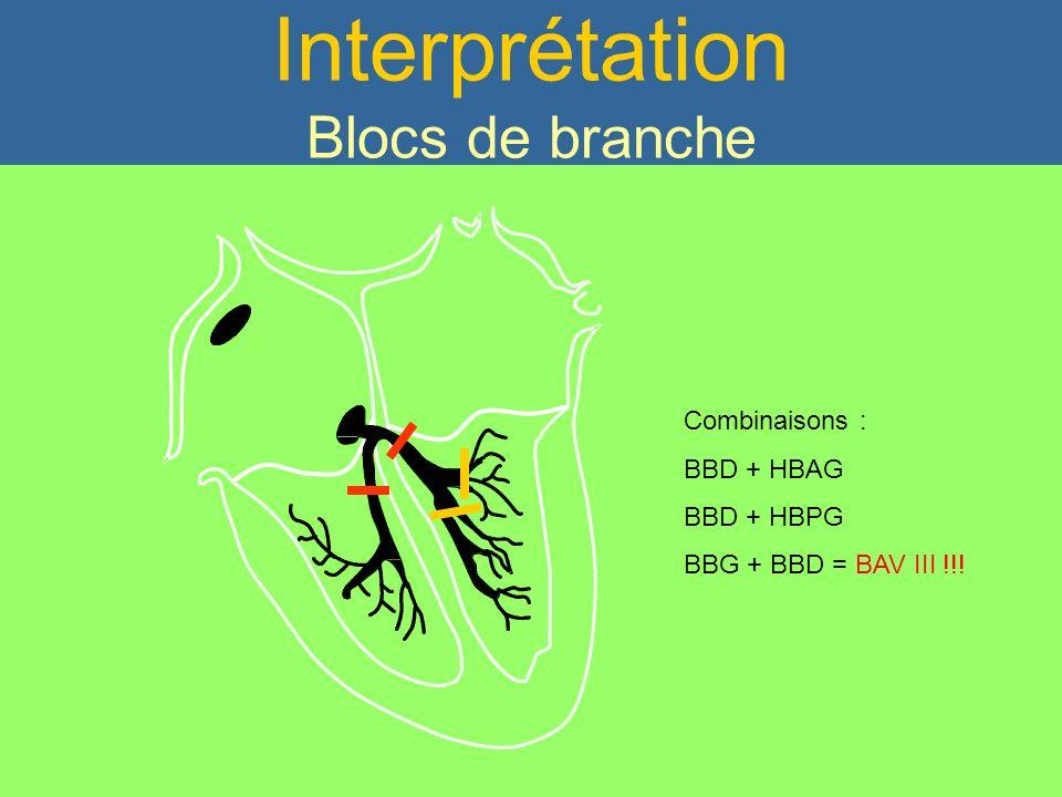 PR Court < 120 ms Interprétation Blocs de branche Combinaisons : BBD + HBAG BBD + HBPG BBG + BBD = BAV III !!!