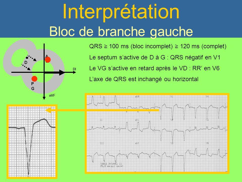 Interprétation Bloc de branche gauche QRS 100 ms (bloc incomplet) 120 ms (complet) Le septum sactive de D à G : QRS négatif en V1 Le VG sactive en ret