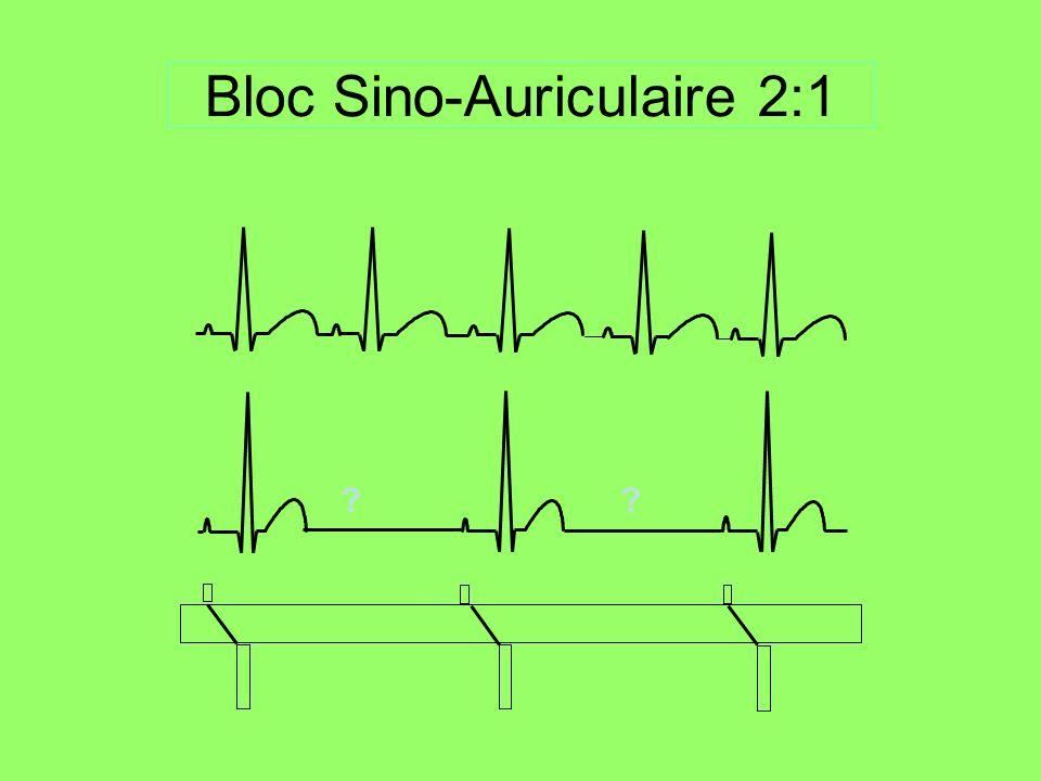 Bloc sino-atrial 2e degré Absence ponctuelle dune onde P