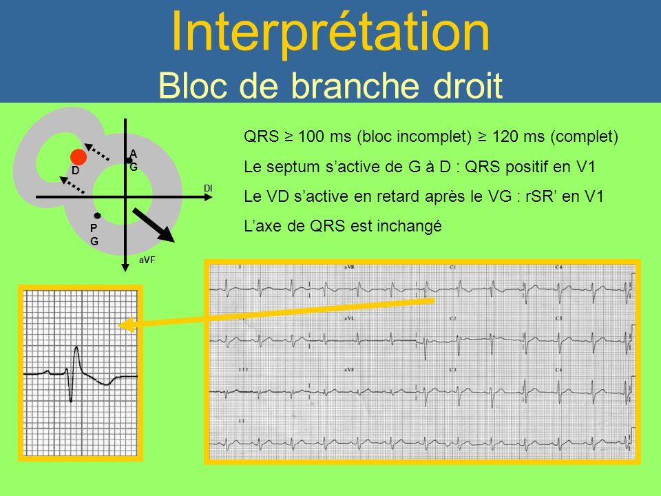Interprétation Bloc de branche droit DI aVF AGAG D PGPG QRS 100 ms (bloc incomplet) 120 ms (complet) Le septum sactive de G à D : QRS positif en V1 Le