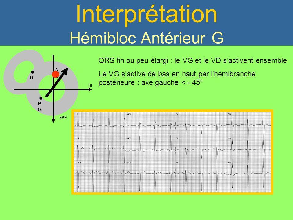 Interprétation Hémibloc Antérieur G QRS fin ou peu élargi : le VG et le VD sactivent ensemble Le VG sactive de bas en haut par lhémibranche postérieur