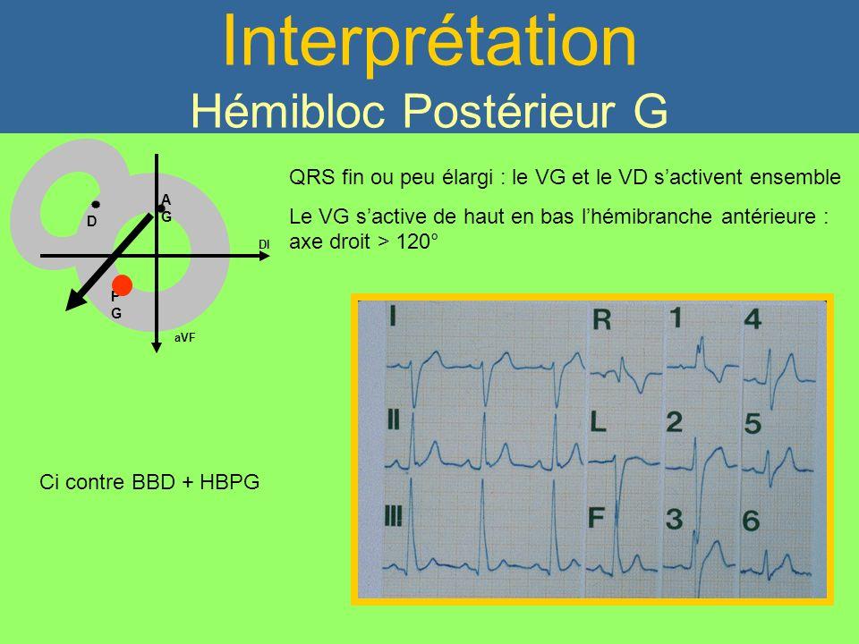 Interprétation Hémibloc Postérieur G QRS fin ou peu élargi : le VG et le VD sactivent ensemble Le VG sactive de haut en bas lhémibranche antérieure :