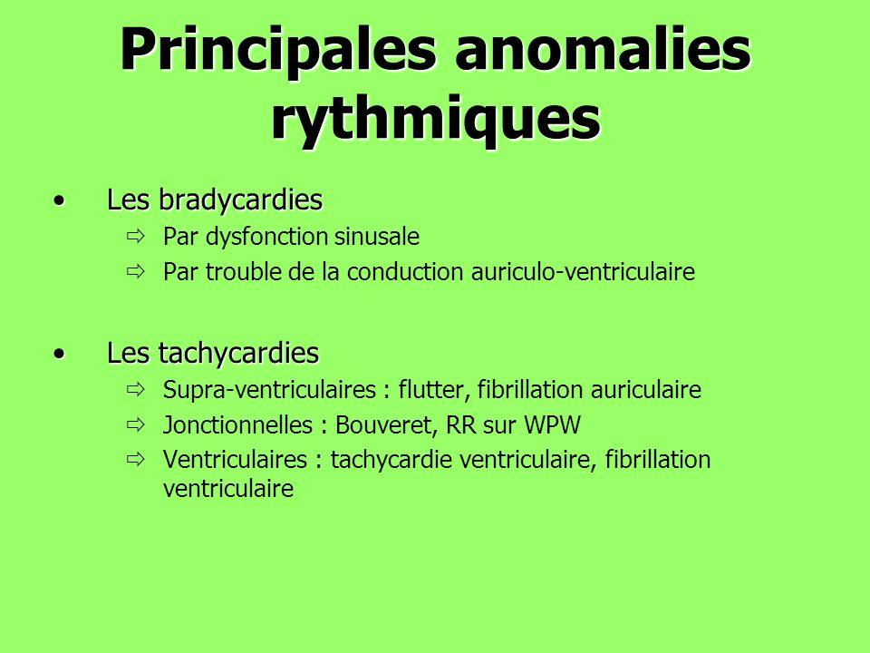 Principales anomalies rythmiques Les bradycardiesLes bradycardies Par dysfonction sinusale Par trouble de la conduction auriculo-ventriculaire Les tac