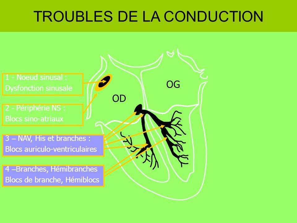 1 - Noeud sinusal : Dysfonction sinusale OD OG TROUBLES DE LA CONDUCTION 2 - Périphérie NS : Blocs sino-atriaux 3 – NAV, His et branches : Blocs auric