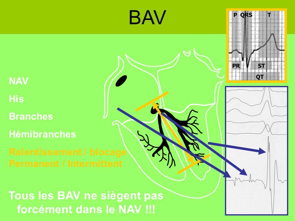 BAV NAV His Branches Hémibranches Ralentissement / blocage Permanent / Intermittent Tous les BAV ne siègent pas forcément dans le NAV !!!