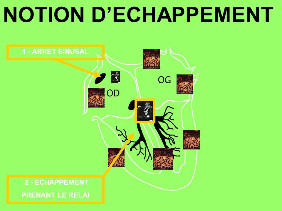 OD OG 2 - ECHAPPEMENT PRENANT LE RELAI 1 - ARRET SINUSAL NOTION DECHAPPEMENT