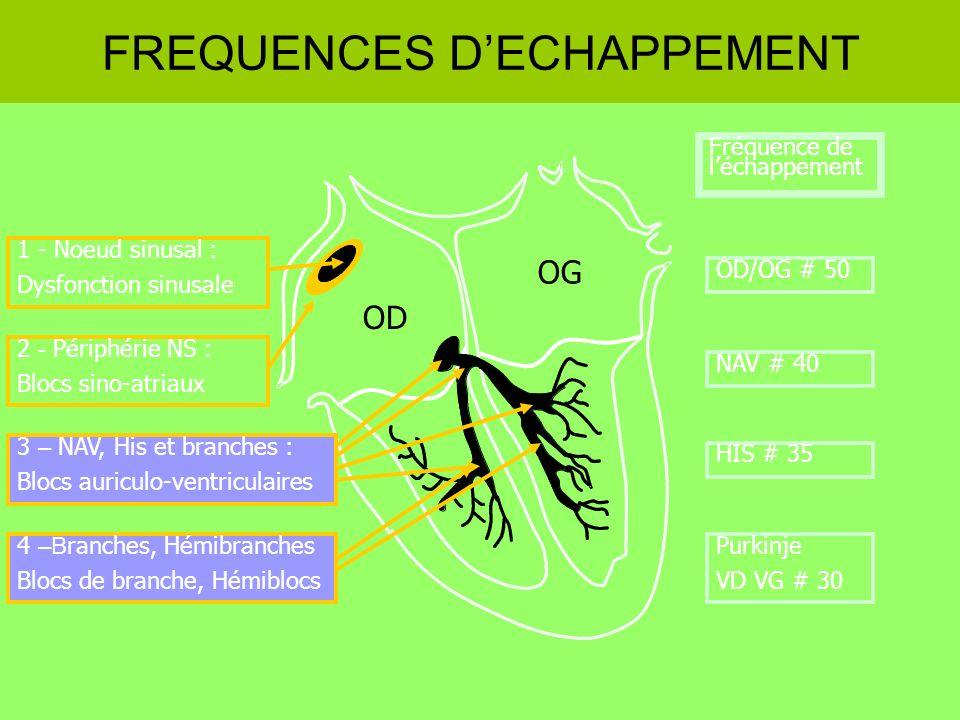 1 - Noeud sinusal : Dysfonction sinusale OD OG FREQUENCES DECHAPPEMENT 2 - Périphérie NS : Blocs sino-atriaux 3 – NAV, His et branches : Blocs auricul