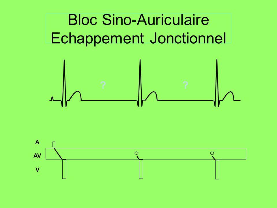 BAV III Désynchronisation totale de loreillette et du ventricule