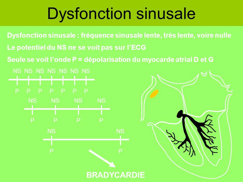Dysfonction sinusale Dysfonction sinusale : fréquence sinusale lente, très lente, voire nulle Le potentiel du NS ne se voit pas sur lECG Seule se voit