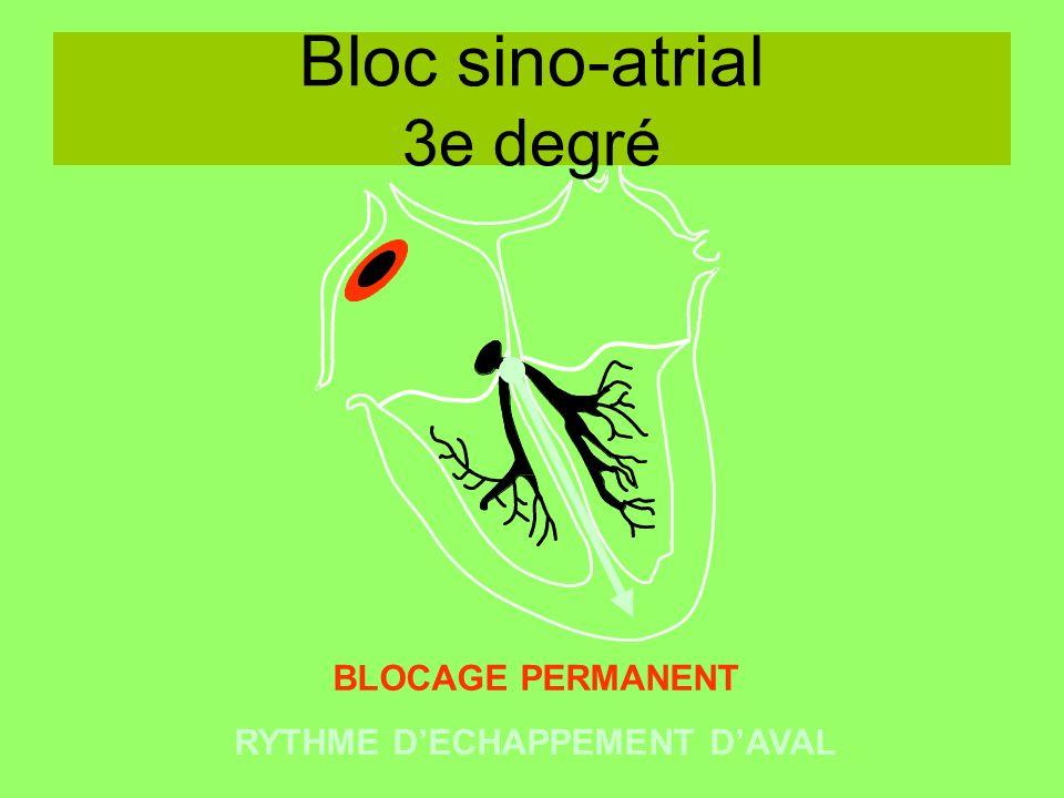 Bloc sino-atrial 3e degré BLOCAGE PERMANENT RYTHME DECHAPPEMENT DAVAL