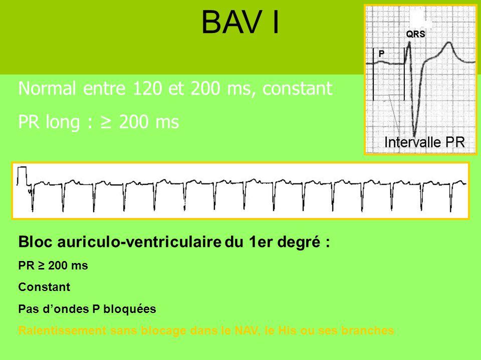 Normal entre 120 et 200 ms, constant PR long : 200 ms BAV I Bloc auriculo-ventriculaire du 1er degré : PR 200 ms Constant Pas dondes P bloquées Ralent
