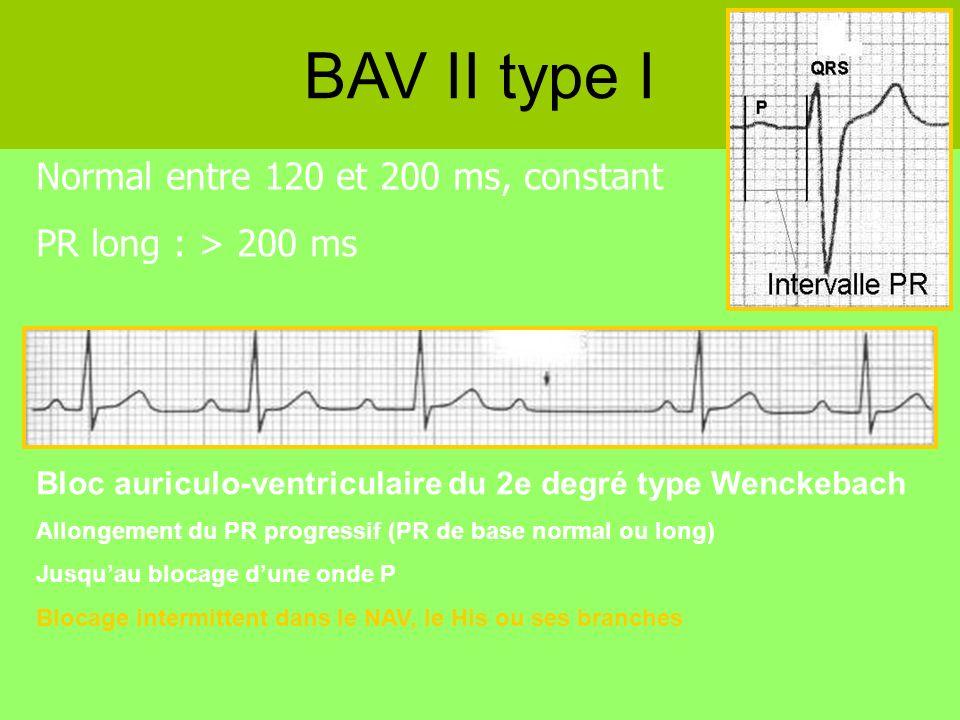 Normal entre 120 et 200 ms, constant PR long : > 200 ms BAV II type I Bloc auriculo-ventriculaire du 2e degré type Wenckebach Allongement du PR progre