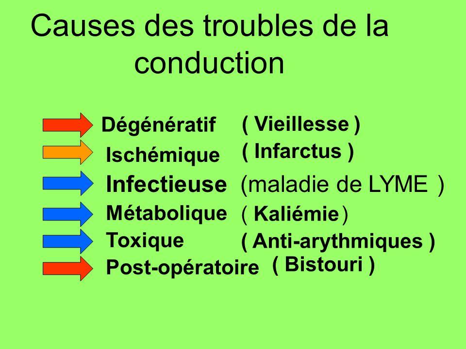 Causes des troubles de la conduction Dégénératif Ischémique Infectieuse (maladie de LYME ) Métabolique Toxique Post-opératoire ( Kaliémie ) ( Infarctu