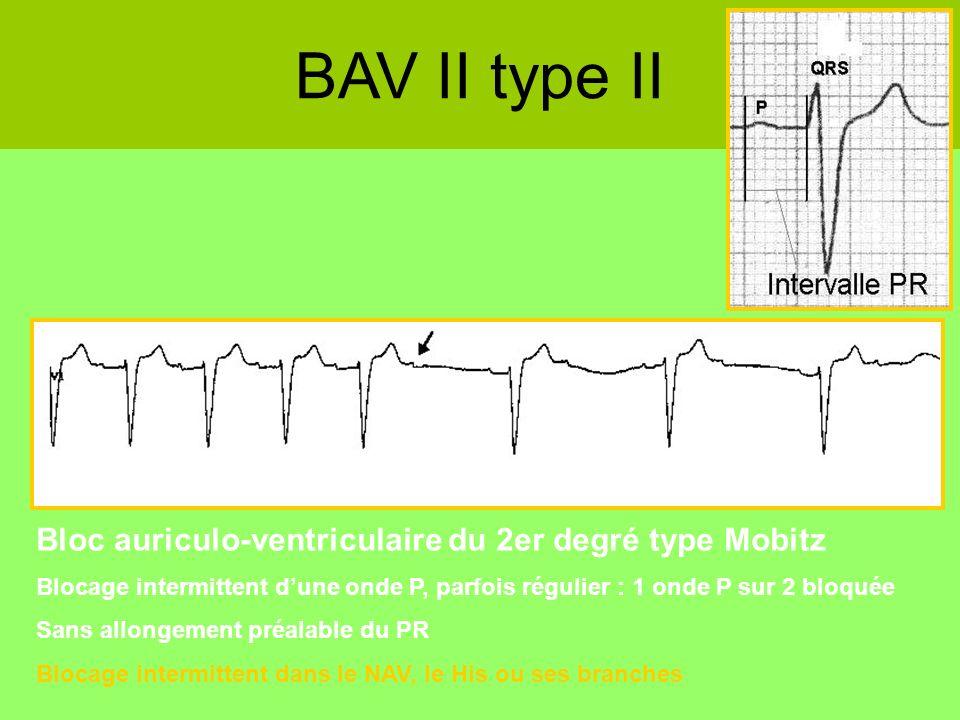 BAV II type II Bloc auriculo-ventriculaire du 2er degré type Mobitz Blocage intermittent dune onde P, parfois régulier : 1 onde P sur 2 bloquée Sans a