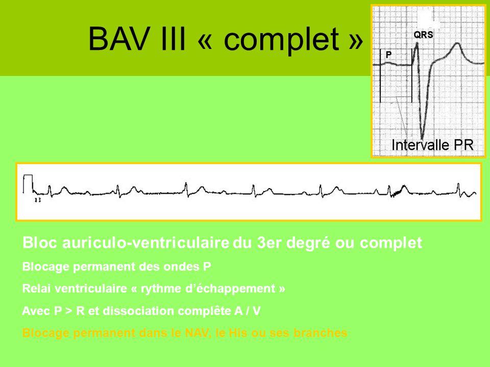 BAV III « complet » Bloc auriculo-ventriculaire du 3er degré ou complet Blocage permanent des ondes P Relai ventriculaire « rythme déchappement » Avec