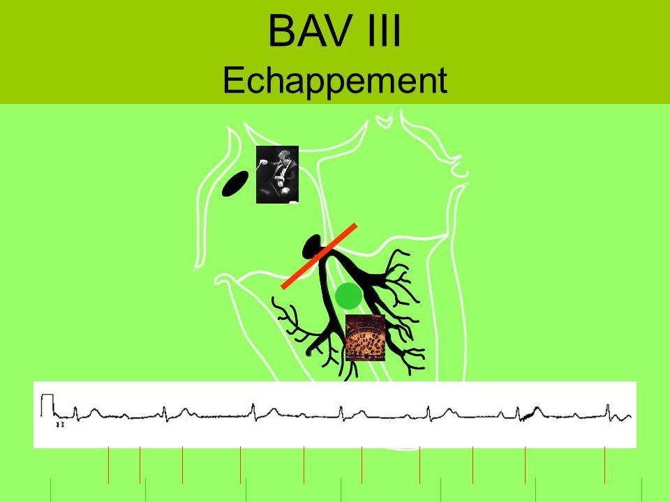 BAV III Echappement
