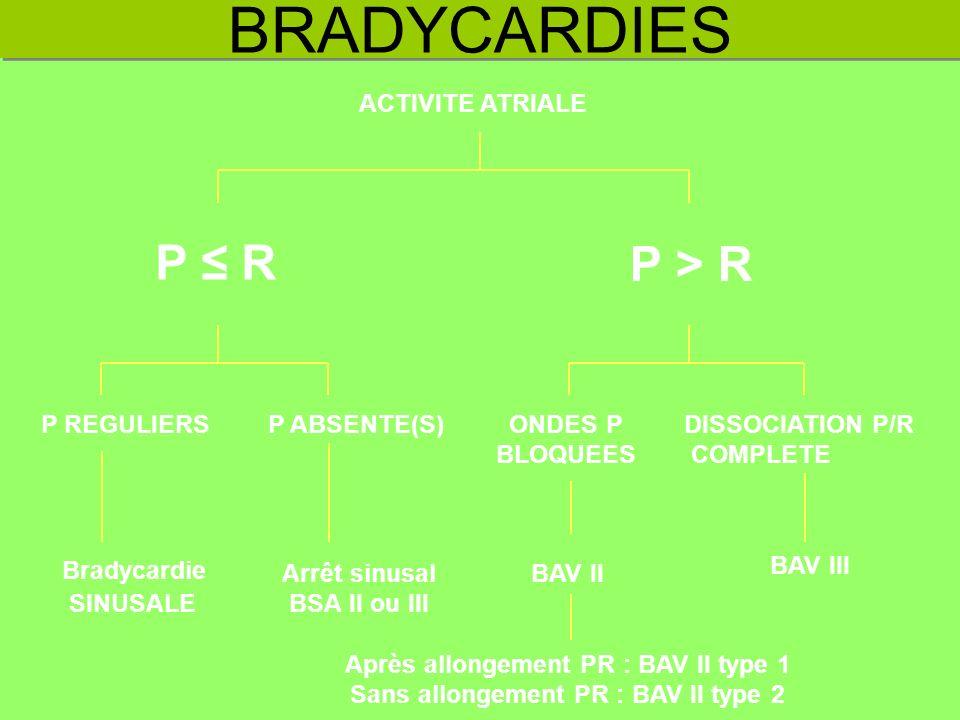 BRADYCARDIES Bradycardie SINUSALE P REGULIERSP ABSENTE(S)ONDES P BLOQUEES BAV II Après allongement PR : BAV II type 1 Sans allongement PR : BAV II typ