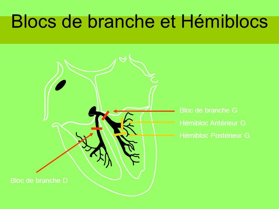 Blocs de branche et Hémiblocs Bloc de branche G Hémibloc Antérieur G Hémibloc Postérieur G Bloc de branche D
