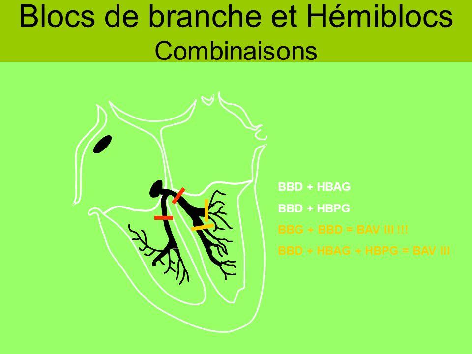 BBD + HBAG BBD + HBPG BBG + BBD = BAV III !!! BBD + HBAG + HBPG = BAV III Blocs de branche et Hémiblocs Combinaisons