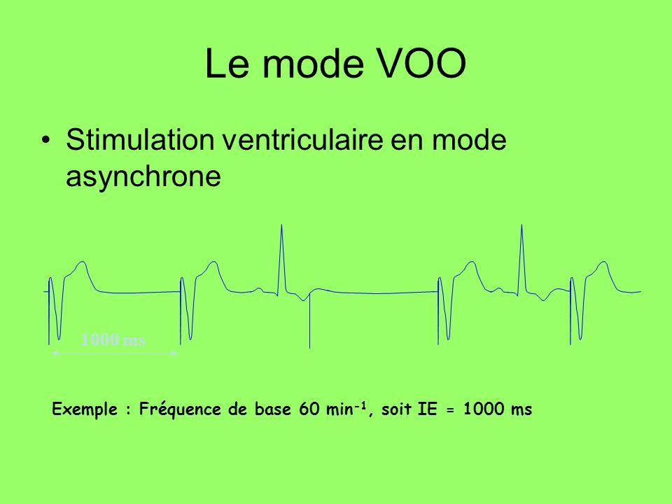 1000 ms Exemple : Fréquence de base 60 min -1, soit IE = 1000 ms Le mode VOO Stimulation ventriculaire en mode asynchrone
