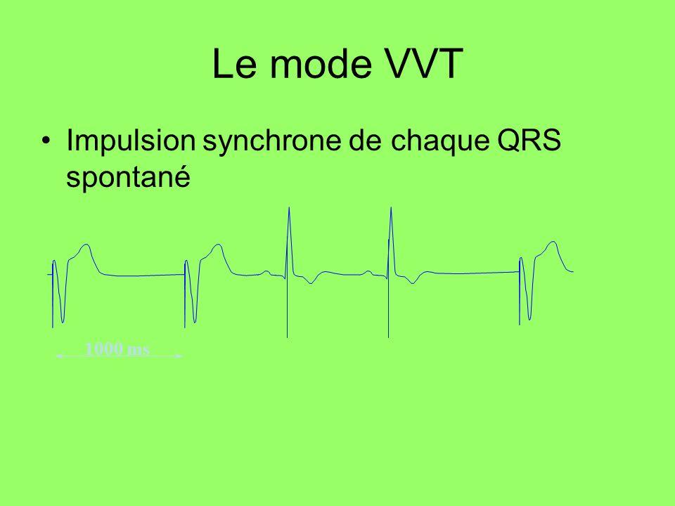 1000 ms Le mode VVT Impulsion synchrone de chaque QRS spontané
