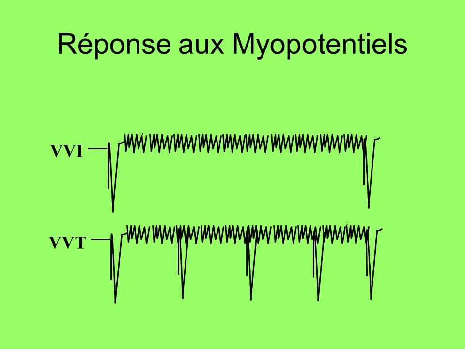 Réponse aux Myopotentiels VVI VVT