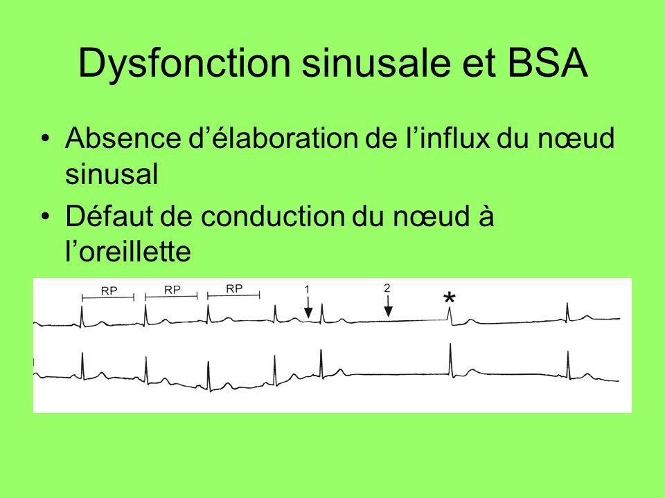 Dysfonction sinusale et BSA Absence délaboration de linflux du nœud sinusal Défaut de conduction du nœud à loreillette