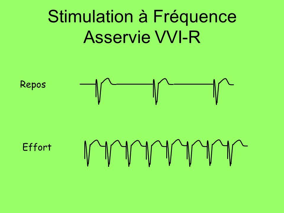 Repos Effort Stimulation à Fréquence Asservie VVI-R