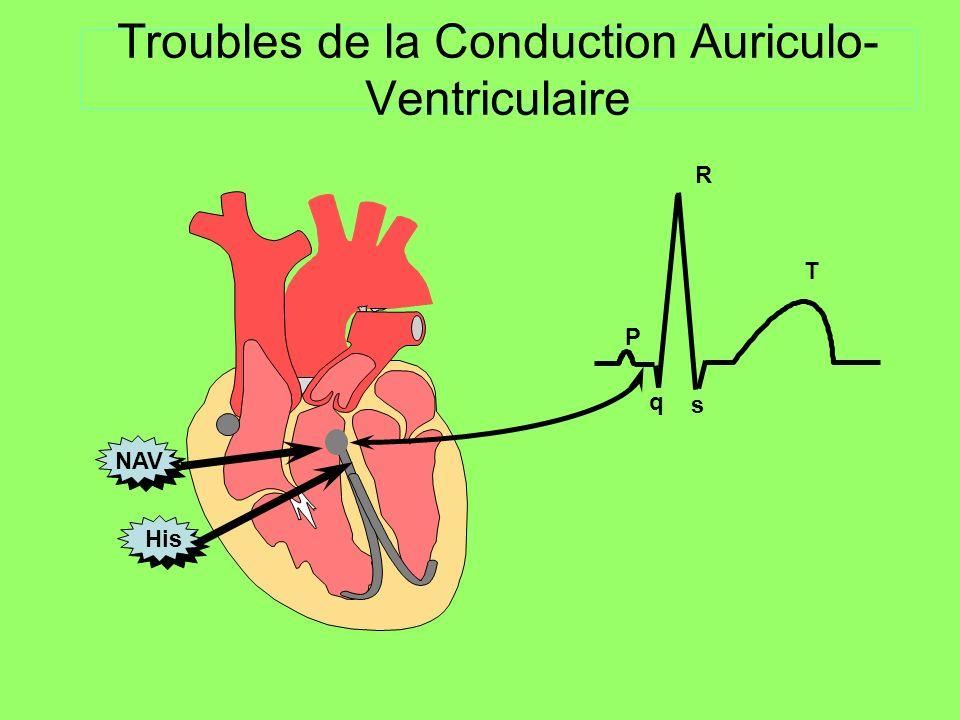 Normal entre 120 et 200 ms, constant PR long : > 200 ms BAV II type I Bloc auriculo-ventriculaire du 2e degré type Wenckebach Allongement du PR progressif (PR de base normal ou long) Jusquau blocage dune onde P Blocage intermittent dans le NAV, le His ou ses branches