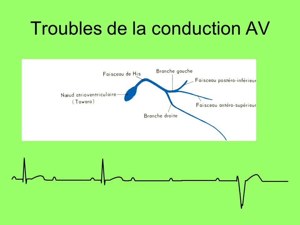 BAV II type II Bloc auriculo-ventriculaire du 2er degré type Mobitz Blocage intermittent dune onde P, parfois régulier : 1 onde P sur 2 bloquée Sans allongement préalable du PR Blocage intermittent dans le NAV, le His ou ses branches