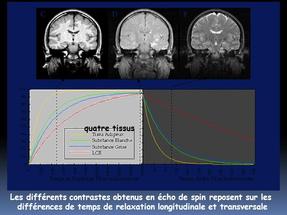 Les différents contrastes obtenus en écho de spin reposent sur les différences de temps de relaxation longitudinale et transversale quatre tissus