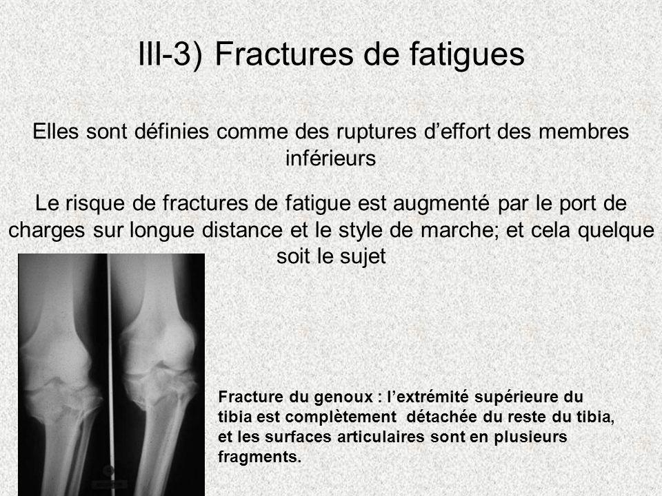 III-3) Fractures de fatigues Le risque de fractures de fatigue est augmenté par le port de charges sur longue distance et le style de marche; et cela