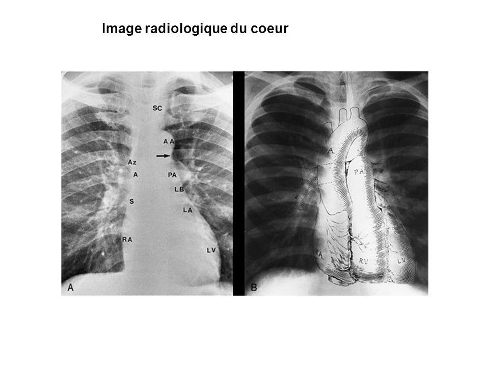 Image radiologique du coeur